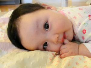 Bayi Gumoh